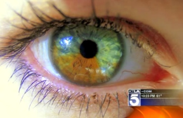 KTLA video of Stroma Eye